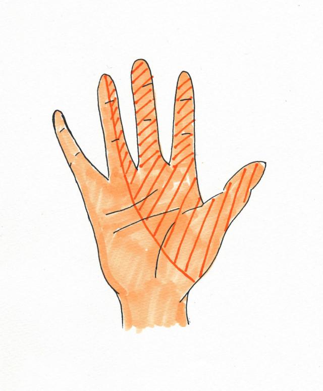 小指以外の手の痺れ